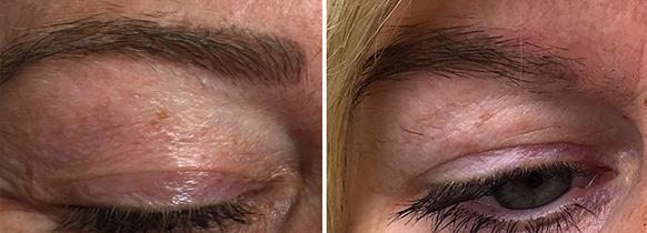 vorher_nachher, Permanent Make-up entfernen